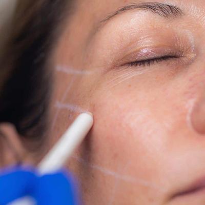 تکنولوژی زیبایی پوست